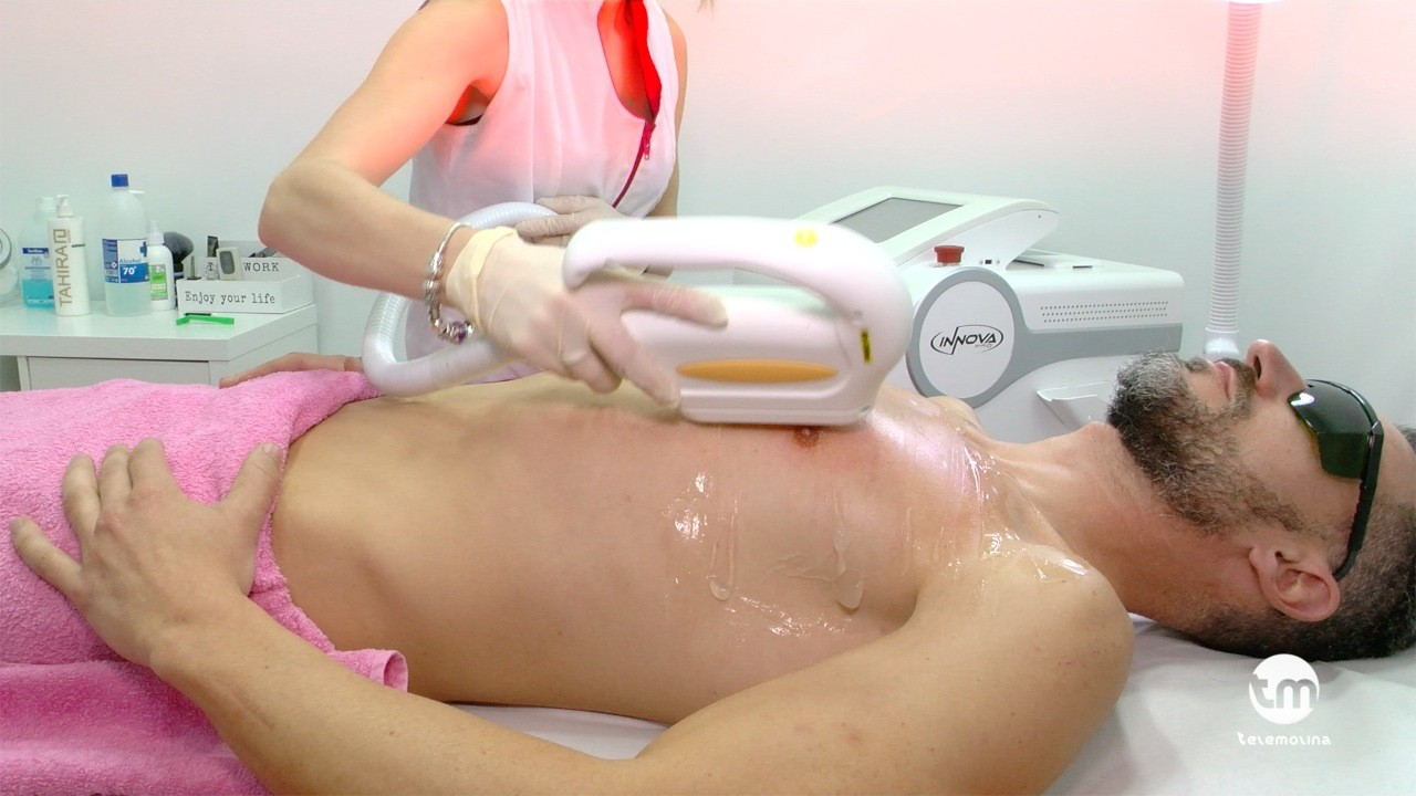 macobe depilacion laser molina de segura